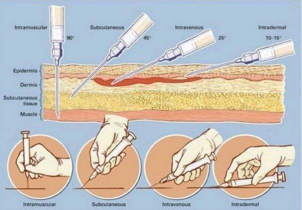Как сделать подкожную инъекцию
