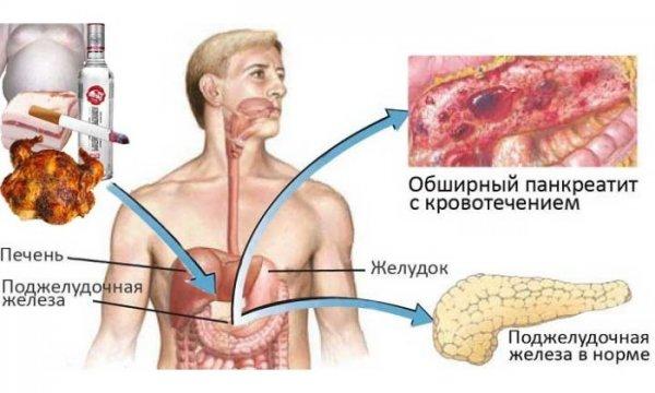 Как лечить поджелудочную железу если она болит
